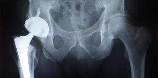 Tecnología nacional, de alta calidad, para los implantes de cadera,